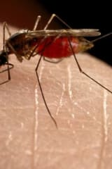Zika Virus Case Confirmed In Hudson Valley