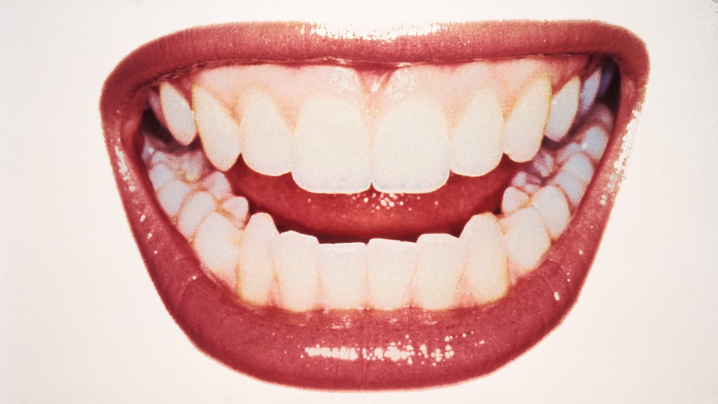 close up of grinning mouth teeth millennial pink gums micro robots microorganism gum dentist dental