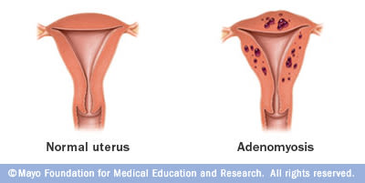 Jeune femme souffrant d'adénomyose