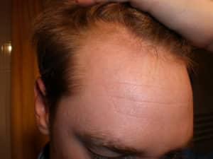 מתאים להשתלת שיער