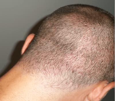 השתלת שיער אזור תורם לאחר שבוע