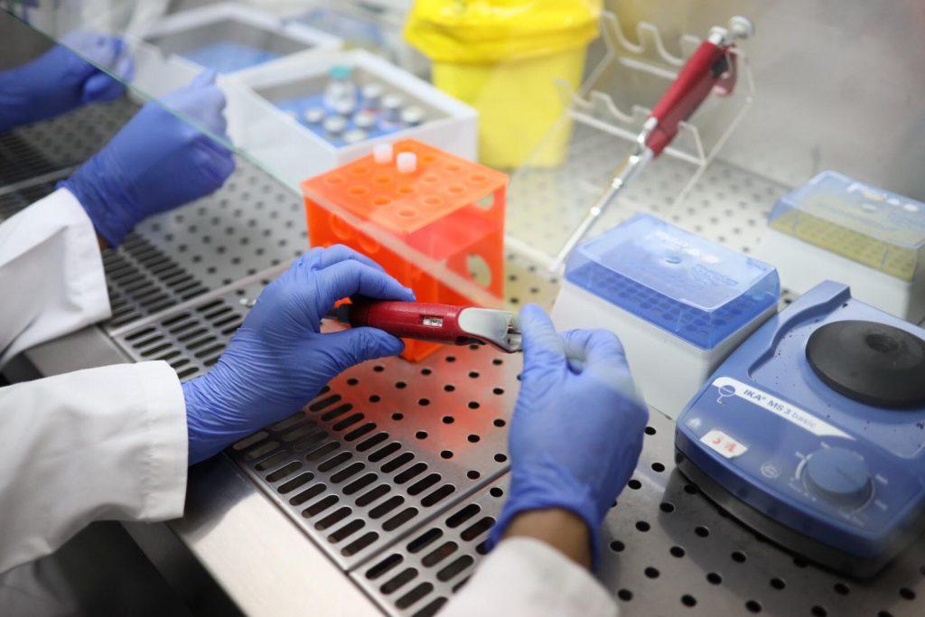 Identifikimi i Koronavirusit tek pacientët/ Manastirliu: Analiza e ...
