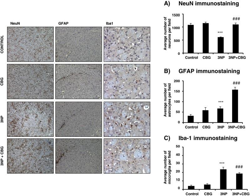 CBG a Huntingtonova choroba - kanabigerol změnil indukované ztráty neuronů