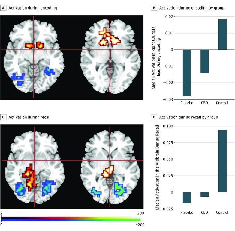 Vliv CBD na aktivaci mozku u klinické psychózy během testování