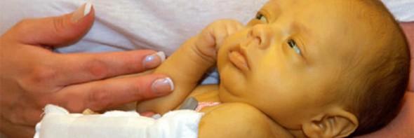 Кон'югаціонной жовтяниця: причини, симптоми і лікування