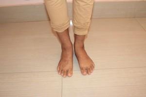 ayurvedic treatment for eczema