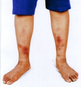 erythema nodosum treatment