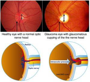 ayurvedic treatment for glaucoma