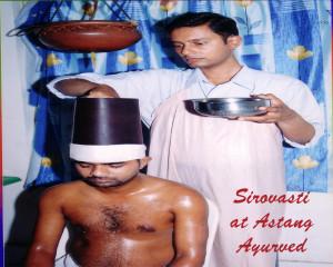 Migraine Ayurvedic Treatment