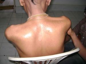 MND treatment success story