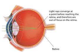 Myopia Ayurvedic Treatment