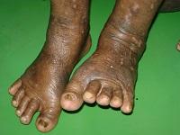 Psoriasis Ayurvedic Treatment