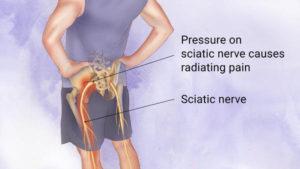 Sciatica symptoms