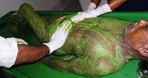 Ayurvedic Skin Doctor