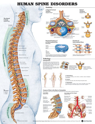 Spine diseases