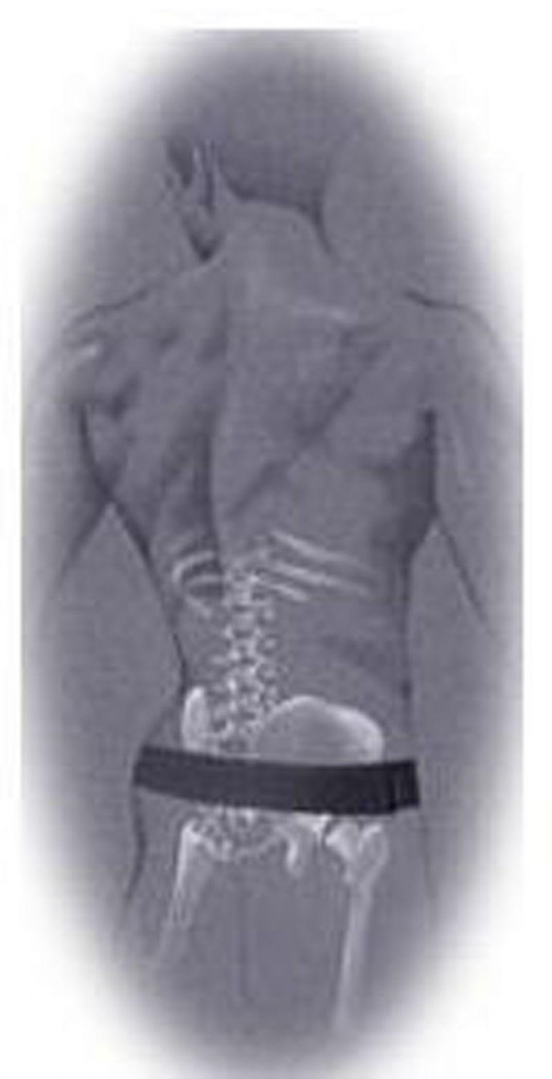 SM.Serola spine