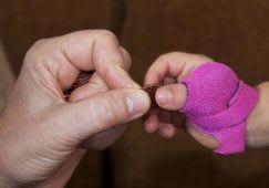 McKie Thumb Splint - Neonatal Sizes