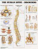 Human Spine Disorders Chart