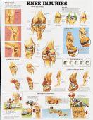 Knee Injuries Chart