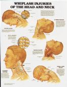 Whiplash Injuries of the Head & Neck Chart