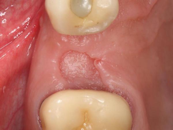 Суха лунка після видалення зуба: причини, симптоми і лікування