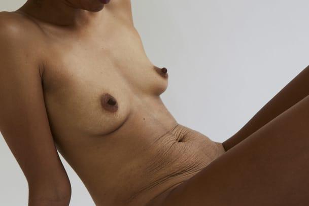 Lea (27): «Noch traue ich mich nicht, in der Badi ein Bikini zu tragen»