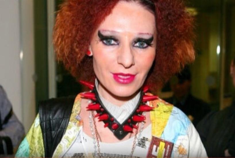 Все морщины пропали: Певица Жанна Агузарова сделала круговую подтяжку и блефаропластику