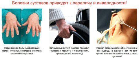 Диетично хранене при ревматоиден артрит - Move&Flex в България