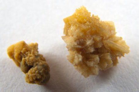 Как вывести и растворить оксалатные камни в почках