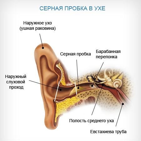 Сірчана пробка: причини, симптоми, ознаки та видалення