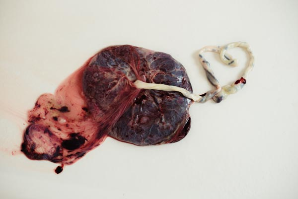 placenta with umbilical cord in the shape of a heart