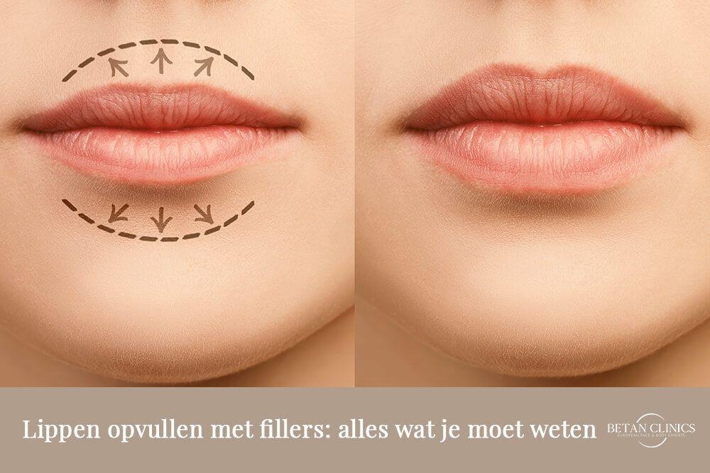Lippen opvullen met fillers: alles wat je moet weten