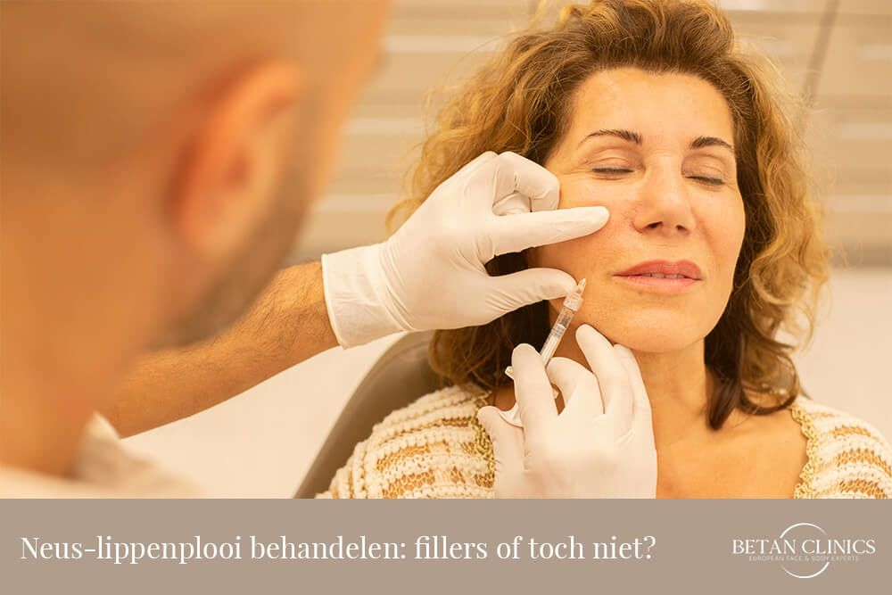 Neus-lippenplooi behandelen: fillers of toch niet?