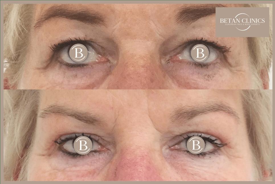 Bovenooglidcorrectie, ooglidcorrectie groningen leeuwarden emmen heerenveen Betan Clinics