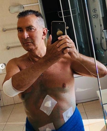 Победивший рак Буйнов перенес новую операцию