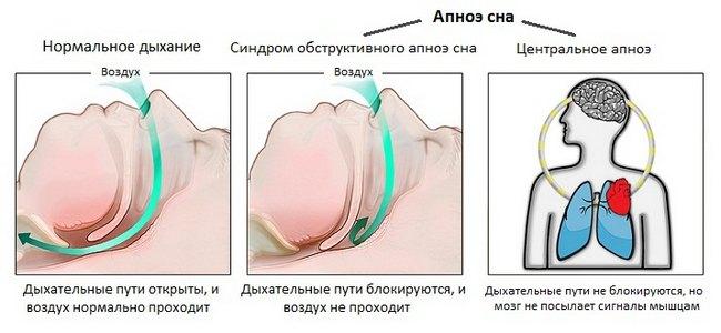 Апное: що це таке, види, причини, симптоми, лікування
