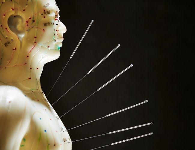 Akupunktur – Sanfte Therapie