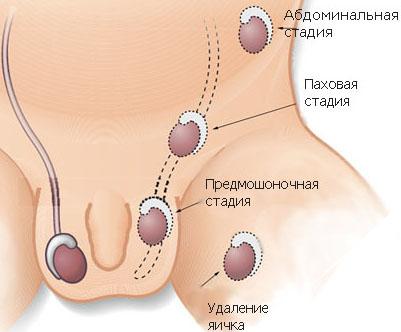 Операция по опущению яичка у ребенка