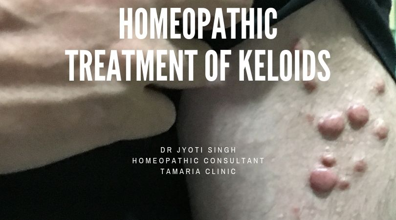 HOMEOPATHIC TREATMENT OF KELOIDS