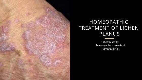 HOMEOPATHIC TREATMENT OF LICHEN PLANUS