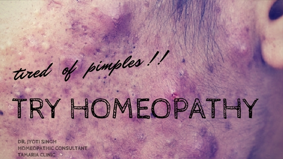 TREAT ACNE WITH HOMEOPATHY