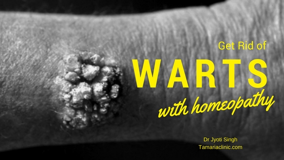 GET RID OF WARTS FOREVER WITH HOMEOPATHY