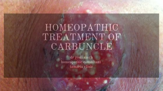 homeopathic treatment of carbuncle!!