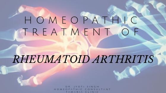 HOMEOPATHIC TREATMENT OF RHEUMATOID ARTHRITIS!!