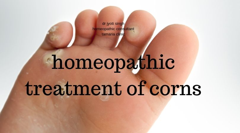 homeopathic treatment of corns!!