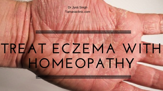 TREAT ECZEMA (ATOPIC DERMATITIS) WITH HOMEOPATHY!!