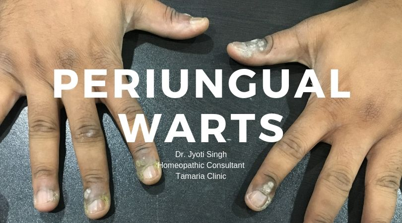 HOMEOPATHIC TREATMENT OF PERIUNGUAL WARTS