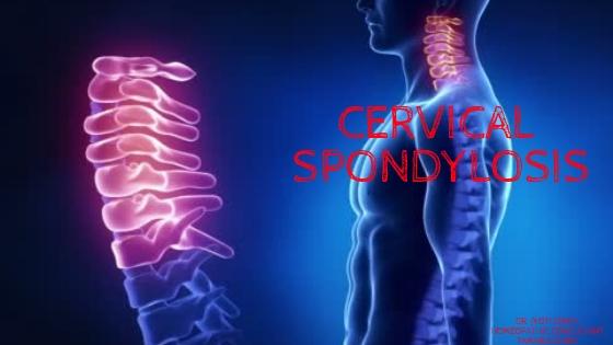 CERVICAL SPONDYLOSIS/ NECK PAIN