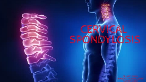 CERVICAL SPONDYLOSIS/ NECK PAIN