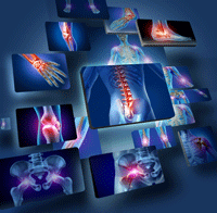 X-Rays of the human body